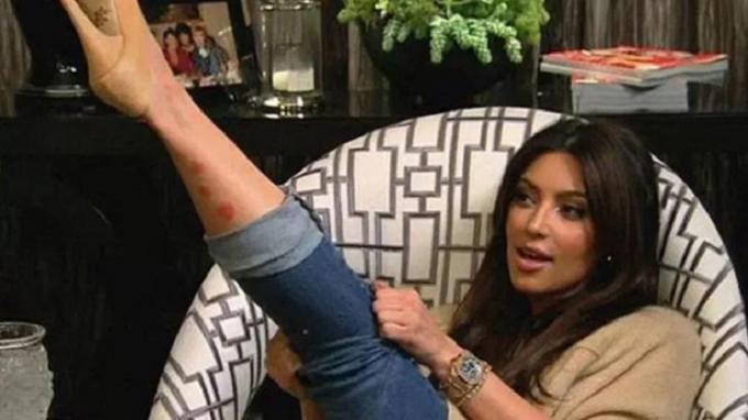 Псориазисът на Ким Кардащиян се е разпространил и по лицето й
