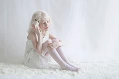 Албиноси като от приказките