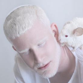 Открийте неземната красота на албиносите