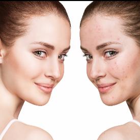 75% от възрастните имат известна степен на непоносимост към лактоза, а това има пряка връзка с развитието на акне при зряла кожа